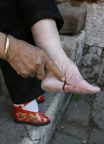 Foot Binding: Bone Breaking Beauty | Cogitz